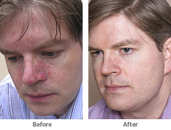 acne-1-ba