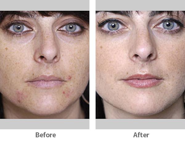 acne-2-ba