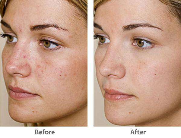 acne-3-ba